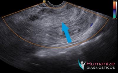 ultrassom-abortamento-incompleto