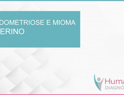 Endometriose e mioma uterino