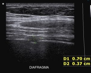 endometriose no diafragma